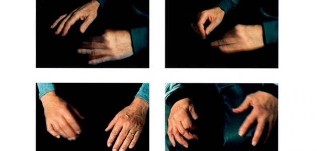 علاج مرض شلل الرعّاش