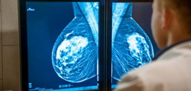 اشعة الكشف عن سرطان الثدي