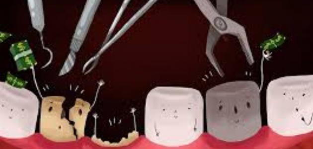 ما علاج خراج الاسنان