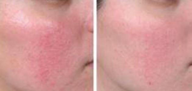 ما هو علاج احمرار الوجه