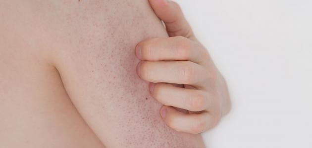 ما علاج الحكة في الجسم