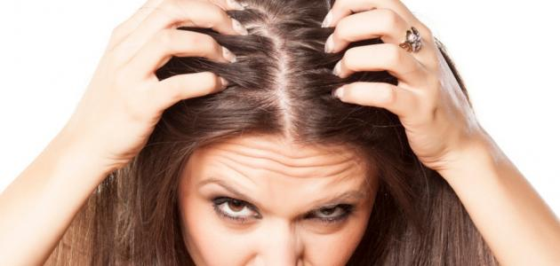 فطريات الشعر