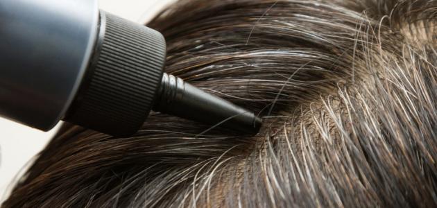 علاج القشرة في الشعر